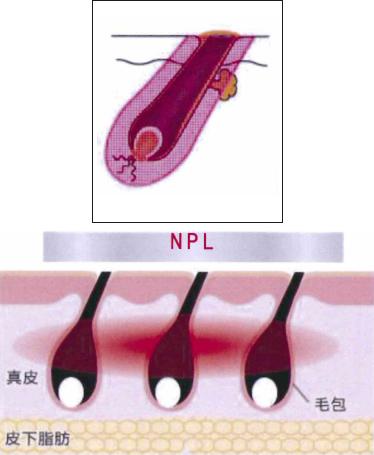リオキシー減毛システム