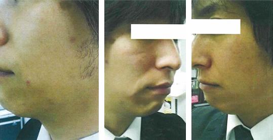 男性ひげ検証写真