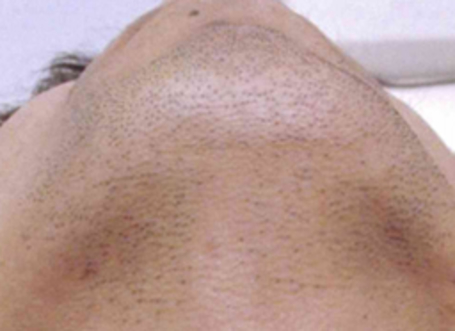 ヒゲ 脱毛の施工前画像