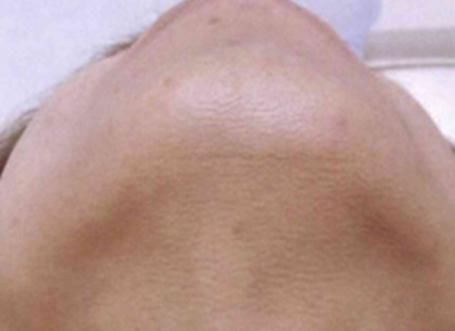 ヒゲ 脱毛の施工後画像